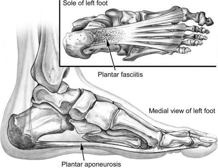 plantar fasciitis home treatment